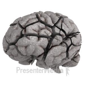 ID# 10340 - Brain Fractured - Presentation Clipart