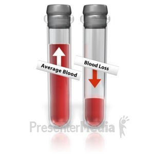 ID# 13410 - Test Tube Blood Loss - Presentation Clipart
