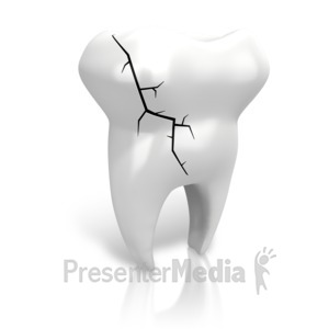 ID# 14433 - Cracked Tooth - Presentation Clipart