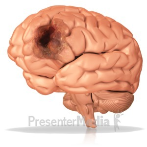 ID# 10342 - Diseased Brain - Presentation Clipart